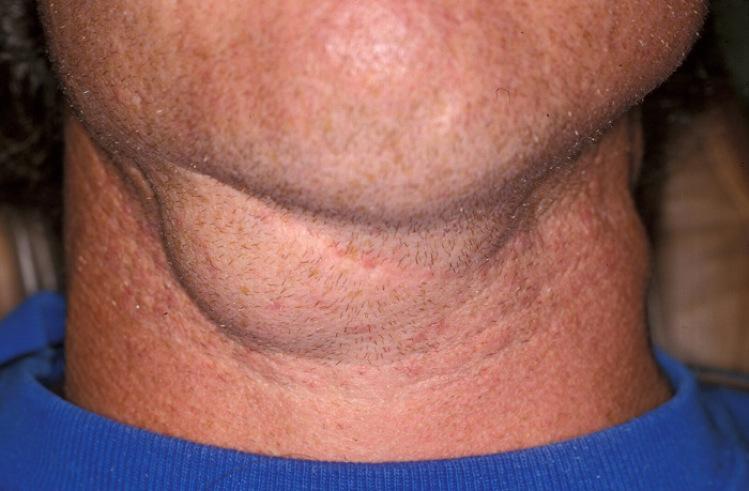 Swollen Neck