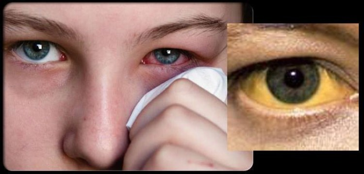 Top 10 Visible Symptoms In Your Body Showing That You're Sick